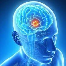 Brain tumor a life-threatening disease but don't panic